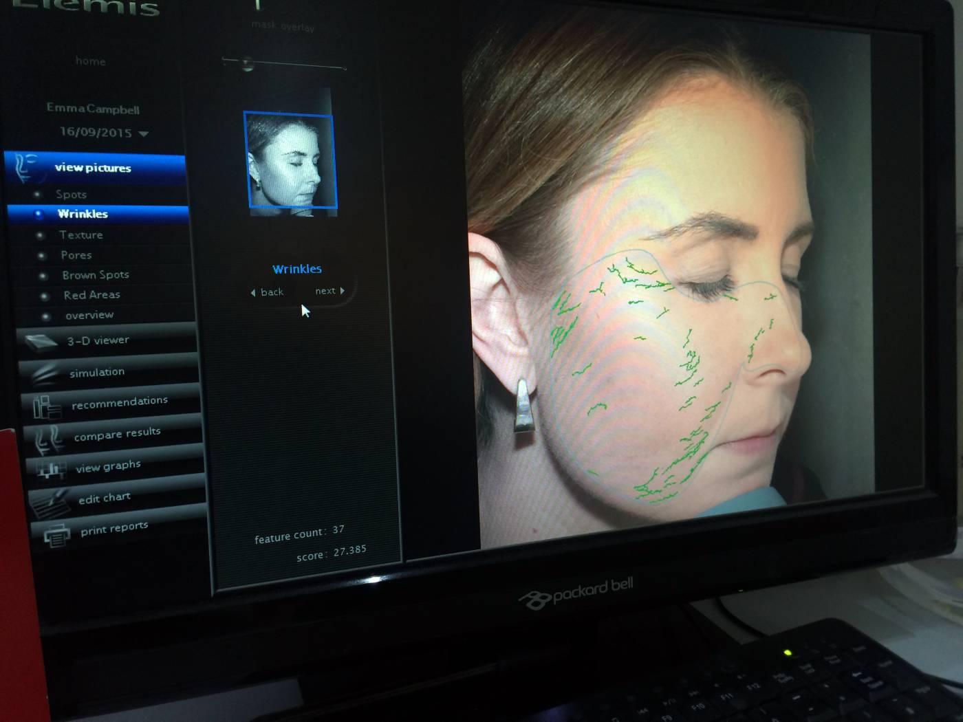 elemis face map